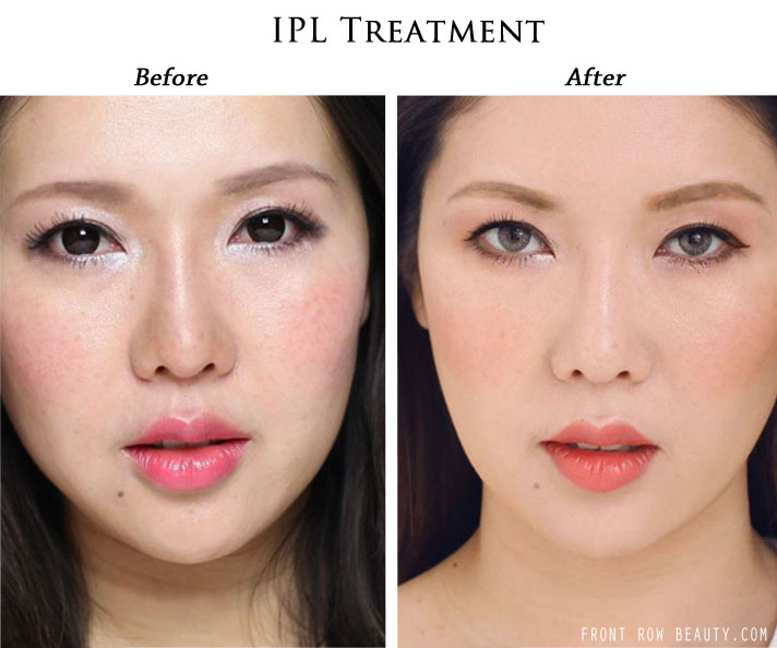 IPL Laser Treatment Review with Before and After Picture